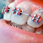Calif. kids dental plans still separate