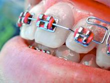 Children's insurance providing braces coverage